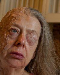 Burns-make up artist-bald cap-prosthetic